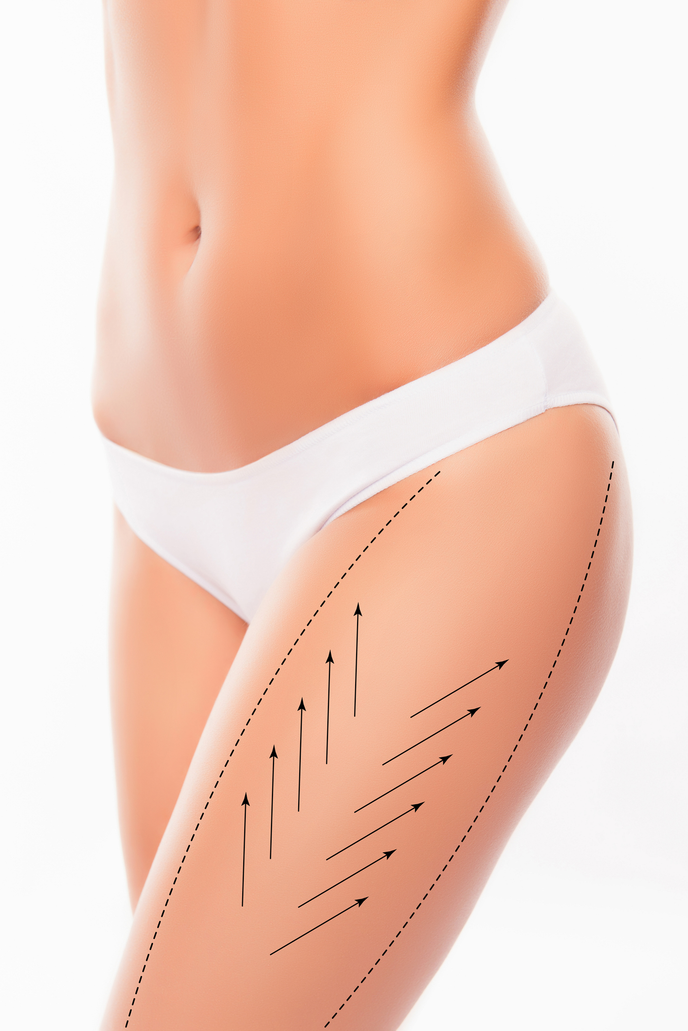 Lymphatic Drainage post cosmetic surgery